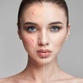 pimples-acne-woman-face-before-after_91497-294-1.jpg